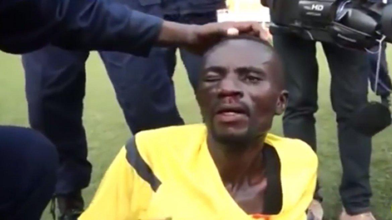 Un juez de linea terminó ensangrentado tras recibir una paliza en el fútbol congolés